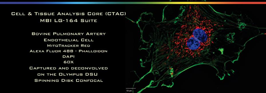 CTAC-bov-artery
