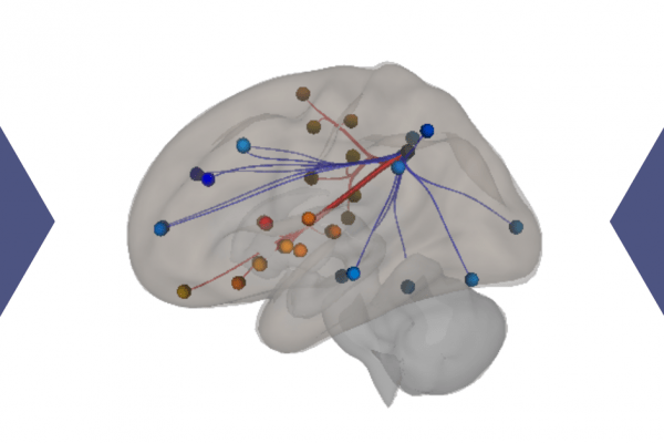 Image of a brain with superimposed connection points over it