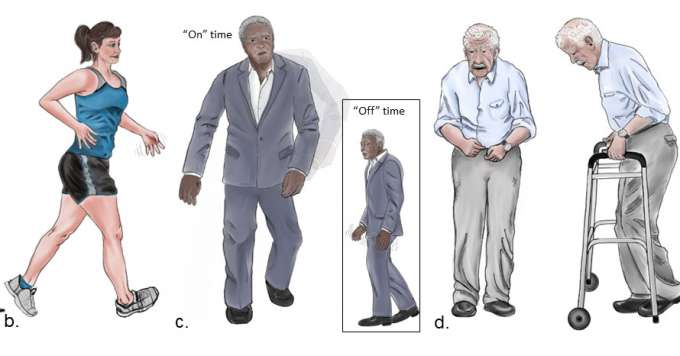 "New Parkinson's representation showing a young, healthy woman with only a few symptoms; a man who is a little older with more symptoms (illustrating his ""on"" time, when medications are successfully treating symptoms, and ""off"" time when they aren't); and an older man with more pronounced and advanced symptoms of the disease."