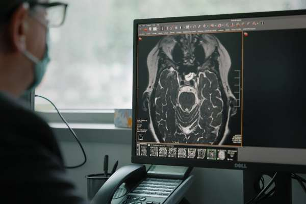 man looking at brain scan on computer