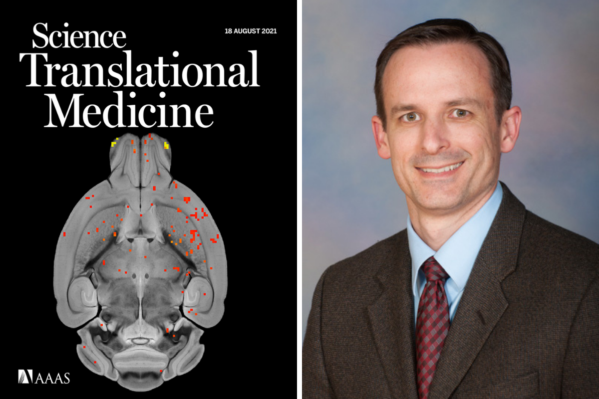 composite photo with the magazine cover displaying a brain scan on the left and photo of doctor david vaillancourt on the right