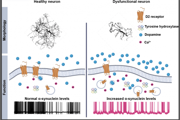diagram showing the difference between dysfunctional and healthy neurons.
